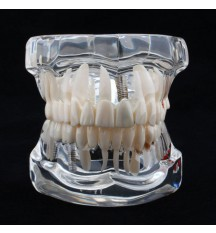 Education tooth model